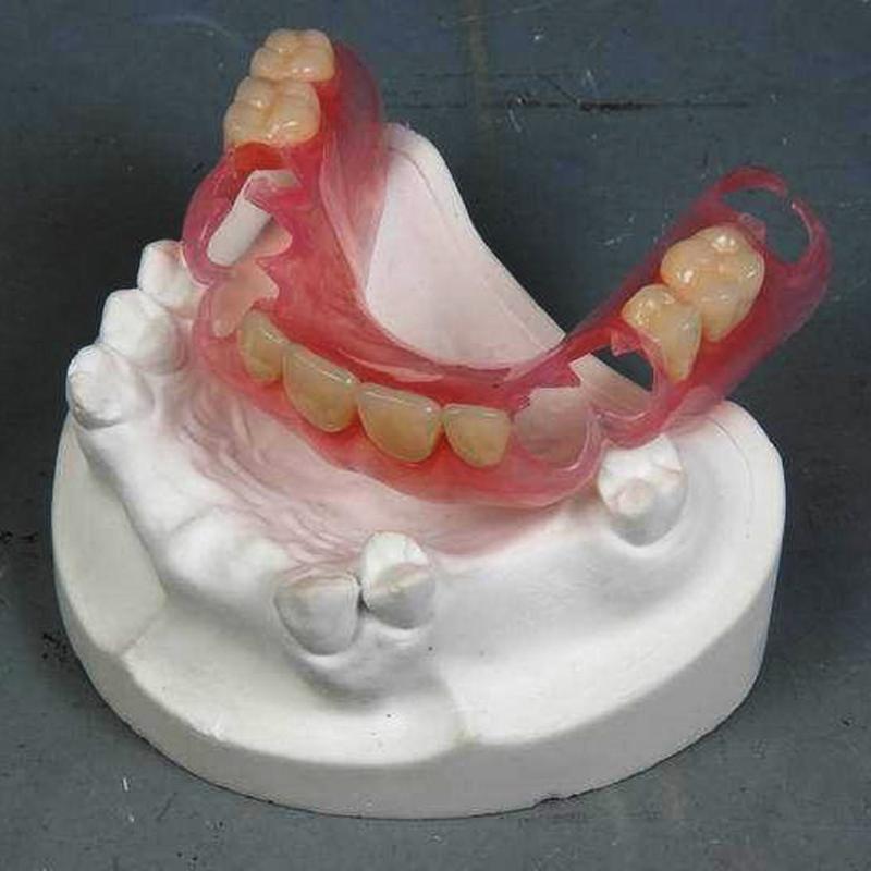 Valplast partial denture